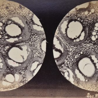 Vues stéréoscopiques prises au microscope